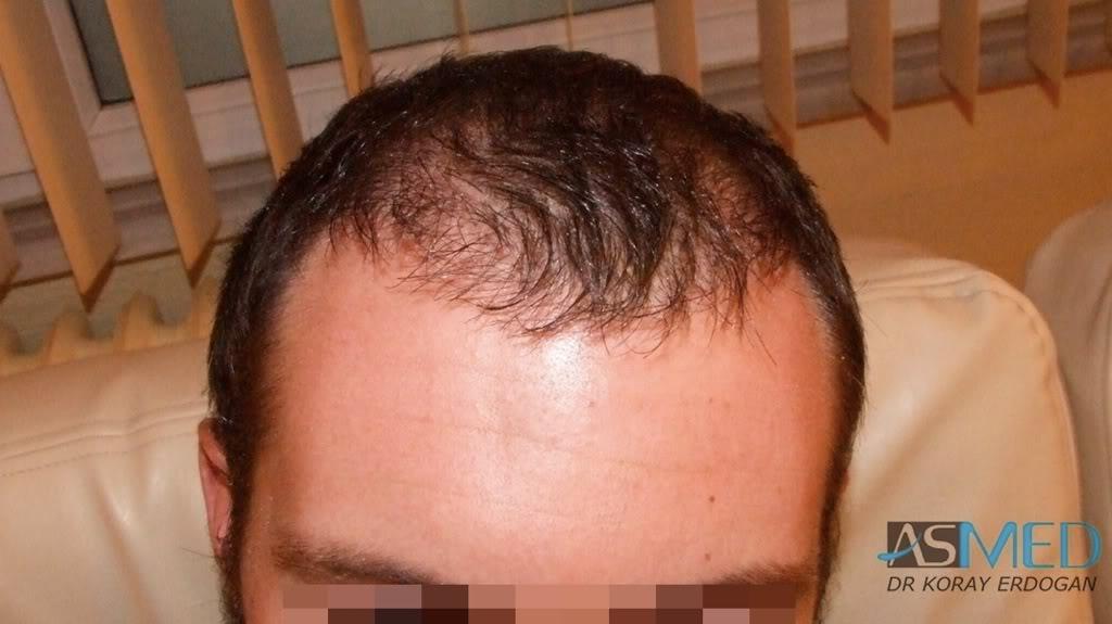 Dr KORAY ERDOGAN - 4425 grafts FUE Repair (2200 FUE + 2225 FUE)
