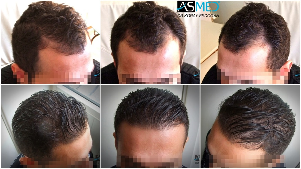 Dr Koray Erdogan - 1250 grafts FUE