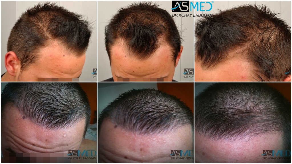 Dr Koray Erdogan - 1500 grafts FUE