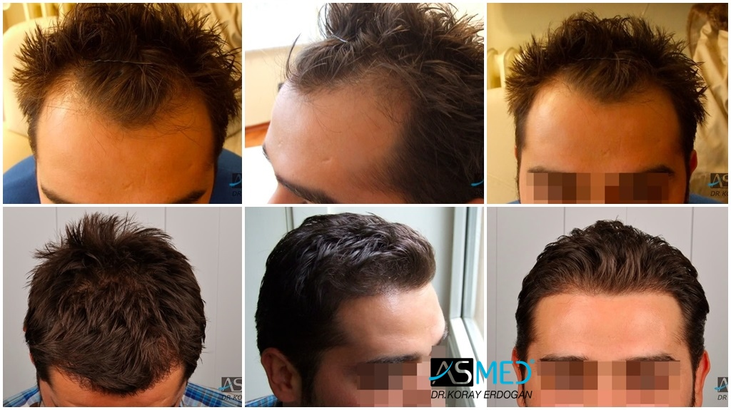 Dr. Koray Erdogan - 1650 grafts FUE