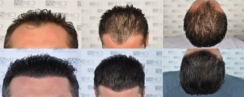 Dr Koray Erdogan -  2402 grafts FUE