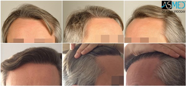 Dr Koray Erdogan - 2404 grafts FUE