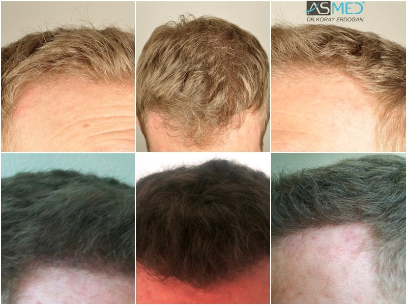 Dr Koray Erdogan - 3003 grafts FUE