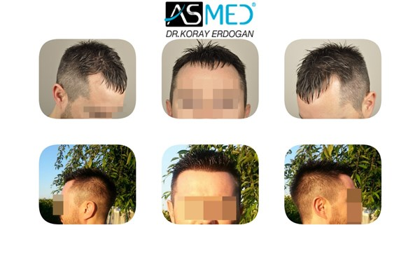 Dr Koray Erdogan - 3005 grafts FUE
