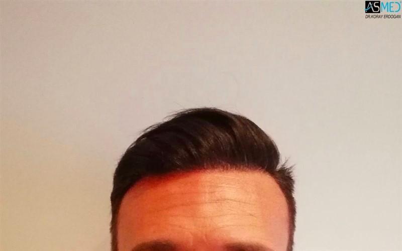 https://www.hairtransplantfue.org/asmed-hair-transplant-result/upload/NORWOOD2/3006-grafts-fue/1year/1_new.jpg