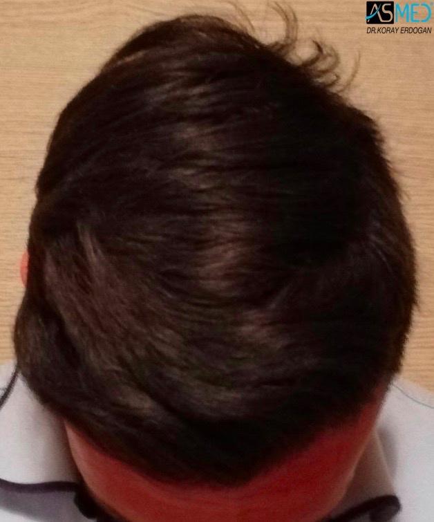 https://www.hairtransplantfue.org/asmed-hair-transplant-result/upload/NORWOOD2/3006-grafts-fue/1year/2_new.jpg