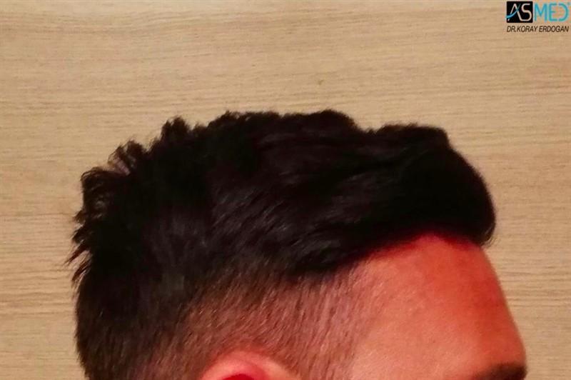 https://www.hairtransplantfue.org/asmed-hair-transplant-result/upload/NORWOOD2/3006-grafts-fue/1year/3_new.jpg