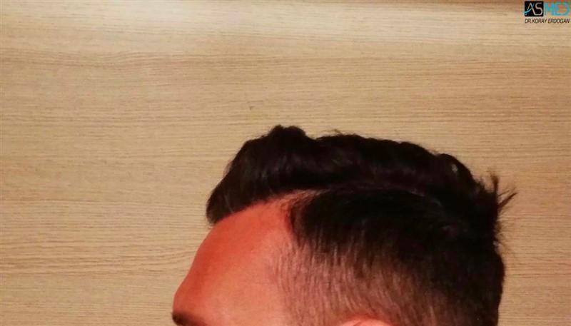 https://www.hairtransplantfue.org/asmed-hair-transplant-result/upload/NORWOOD2/3006-grafts-fue/1year/4_new.jpg