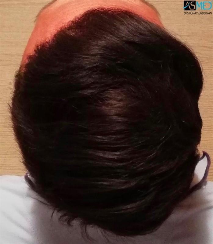 https://www.hairtransplantfue.org/asmed-hair-transplant-result/upload/NORWOOD2/3006-grafts-fue/1year/5_new.jpg