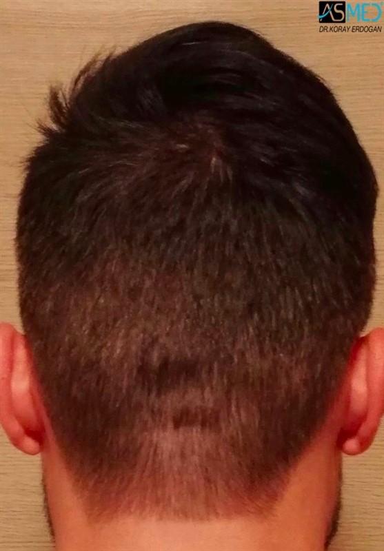 https://www.hairtransplantfue.org/asmed-hair-transplant-result/upload/NORWOOD2/3006-grafts-fue/1year/6_new.jpg