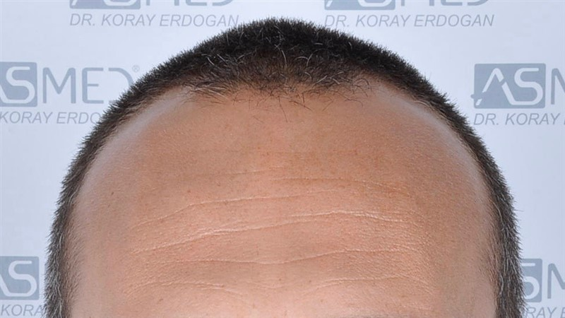 https://www.hairtransplantfue.org/asmed-hair-transplant-result/upload/NORWOOD2/3006-grafts-fue/before/_DSC1639.jpg