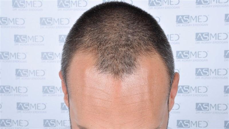 https://www.hairtransplantfue.org/asmed-hair-transplant-result/upload/NORWOOD2/3006-grafts-fue/before/_DSC1640.jpg