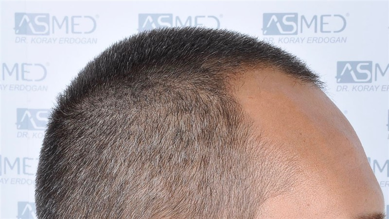 https://www.hairtransplantfue.org/asmed-hair-transplant-result/upload/NORWOOD2/3006-grafts-fue/before/_DSC1647.jpg