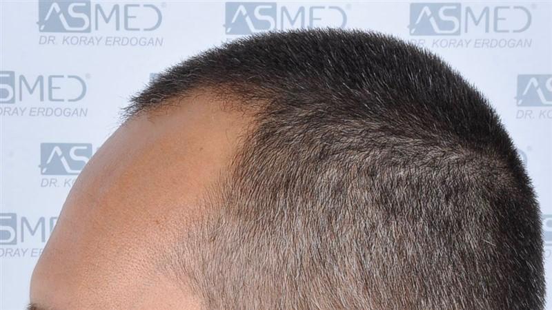 https://www.hairtransplantfue.org/asmed-hair-transplant-result/upload/NORWOOD2/3006-grafts-fue/before/_DSC1648.jpg
