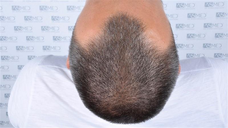 https://www.hairtransplantfue.org/asmed-hair-transplant-result/upload/NORWOOD2/3006-grafts-fue/before/_DSC1649.jpg