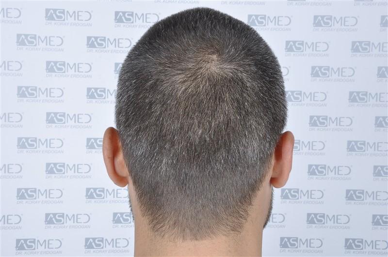 https://www.hairtransplantfue.org/asmed-hair-transplant-result/upload/NORWOOD2/3006-grafts-fue/before/_DSC1650.jpg