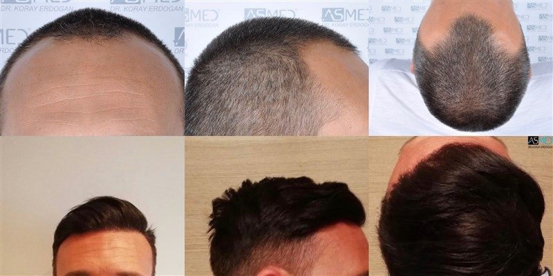 Dr Koray Erdogan -  3006 grafts FUE