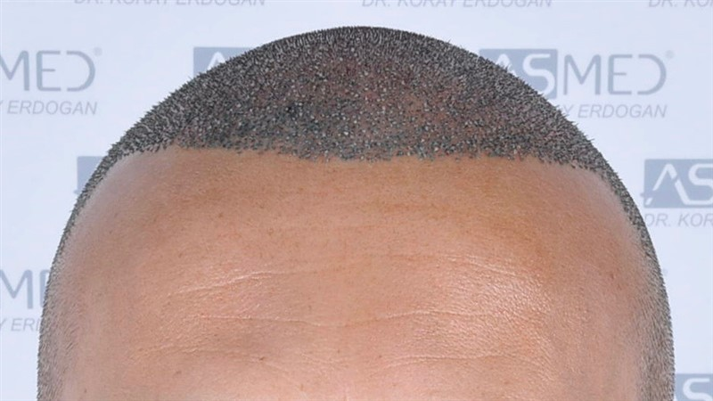 https://www.hairtransplantfue.org/asmed-hair-transplant-result/upload/NORWOOD2/3006-grafts-fue/operation/_DSC1925.jpg