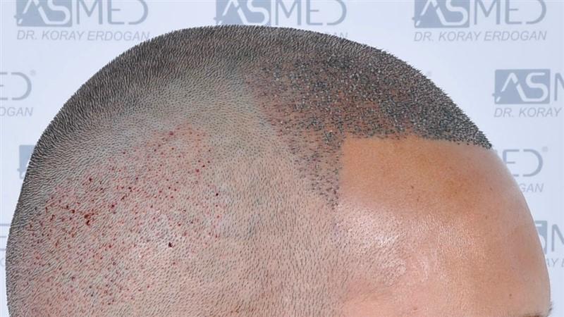 https://www.hairtransplantfue.org/asmed-hair-transplant-result/upload/NORWOOD2/3006-grafts-fue/operation/_DSC1932.jpg