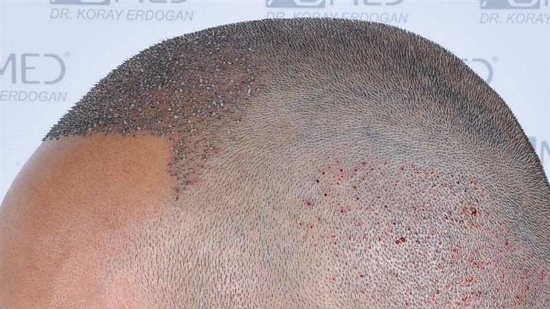 https://www.hairtransplantfue.org/asmed-hair-transplant-result/upload/NORWOOD2/3006-grafts-fue/operation/_DSC1933.jpg