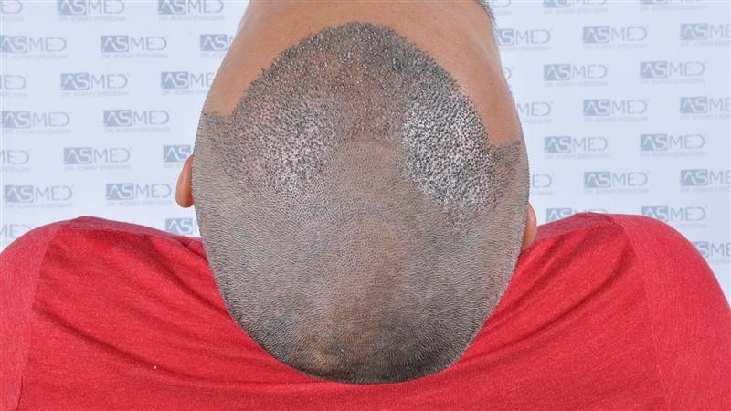 https://www.hairtransplantfue.org/asmed-hair-transplant-result/upload/NORWOOD2/3006-grafts-fue/operation/_DSC1934.jpg
