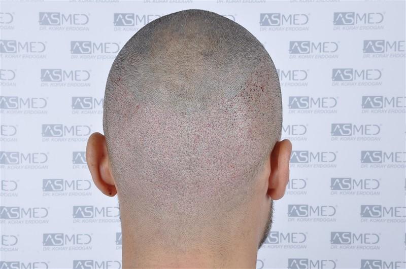 https://www.hairtransplantfue.org/asmed-hair-transplant-result/upload/NORWOOD2/3006-grafts-fue/operation/_DSC1935.jpg