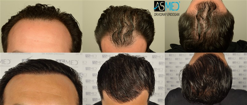 Dr Koray Erdogan - 3012 grafts FUE