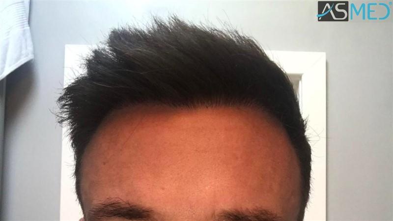 https://www.hairtransplantfue.org/asmed-hair-transplant-result/upload/NORWOOD2/3020-grafts-FUE/after13months/1_V2.jpg