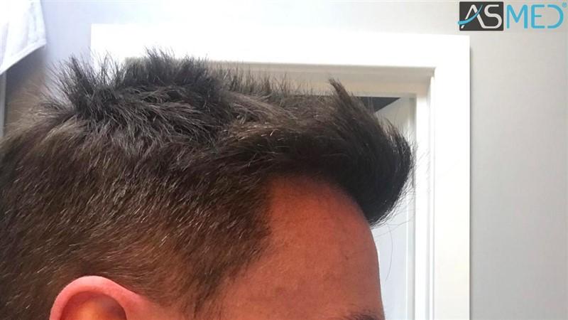 https://www.hairtransplantfue.org/asmed-hair-transplant-result/upload/NORWOOD2/3020-grafts-FUE/after13months/2_V2.jpg