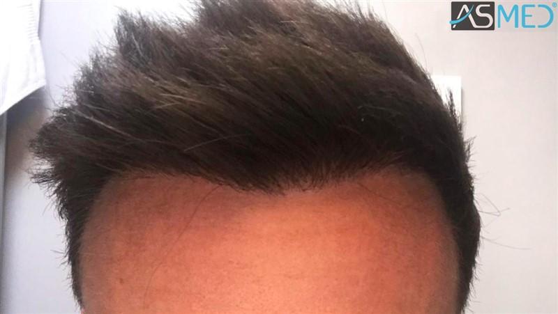 https://www.hairtransplantfue.org/asmed-hair-transplant-result/upload/NORWOOD2/3020-grafts-FUE/after13months/3_V2.jpg