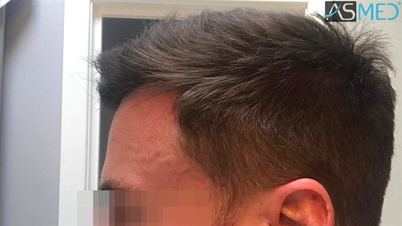https://www.hairtransplantfue.org/asmed-hair-transplant-result/upload/NORWOOD2/3020-grafts-FUE/after13months/6_V2.jpg