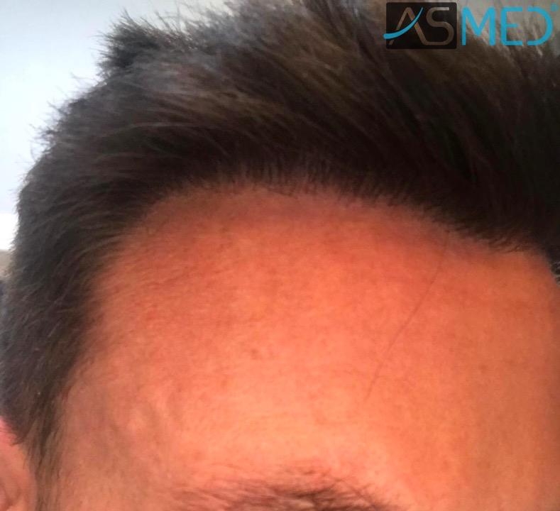 https://www.hairtransplantfue.org/asmed-hair-transplant-result/upload/NORWOOD2/3020-grafts-FUE/after13months/7_V2.jpg