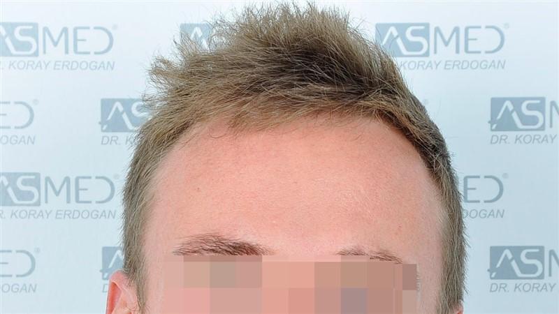 https://www.hairtransplantfue.org/asmed-hair-transplant-result/upload/NORWOOD2/3020-grafts-FUE/before/_DSC0858_V2.jpg