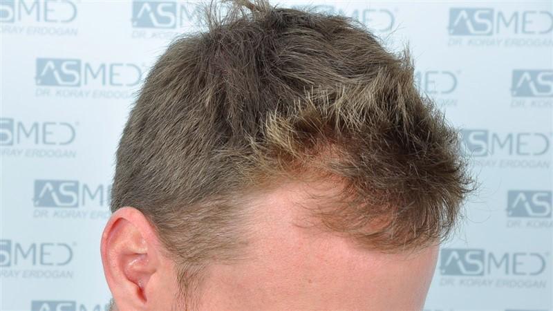 https://www.hairtransplantfue.org/asmed-hair-transplant-result/upload/NORWOOD2/3020-grafts-FUE/before/_DSC0861_V2.jpg