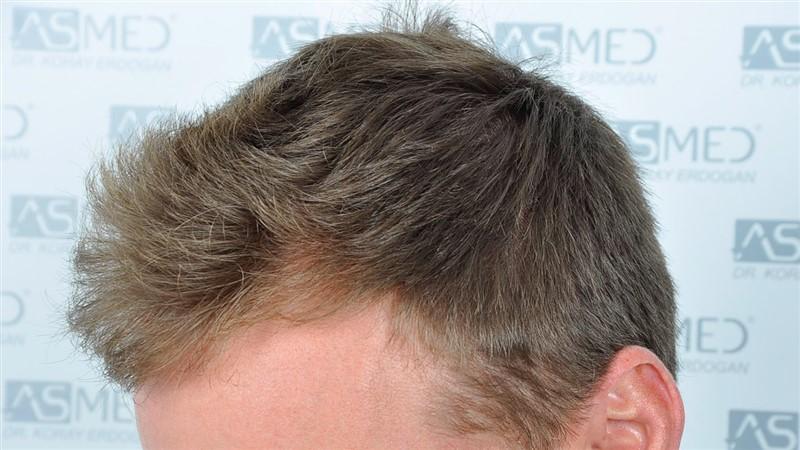 https://www.hairtransplantfue.org/asmed-hair-transplant-result/upload/NORWOOD2/3020-grafts-FUE/before/_DSC0863_V2.jpg
