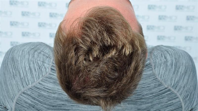 https://www.hairtransplantfue.org/asmed-hair-transplant-result/upload/NORWOOD2/3020-grafts-FUE/before/_DSC0867_V2.jpg