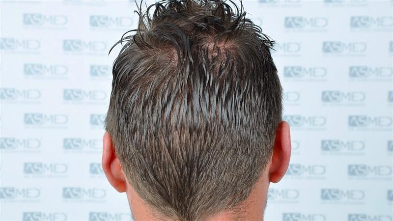 https://www.hairtransplantfue.org/asmed-hair-transplant-result/upload/NORWOOD2/3020-grafts-FUE/before/_DSC0875_V2.jpg