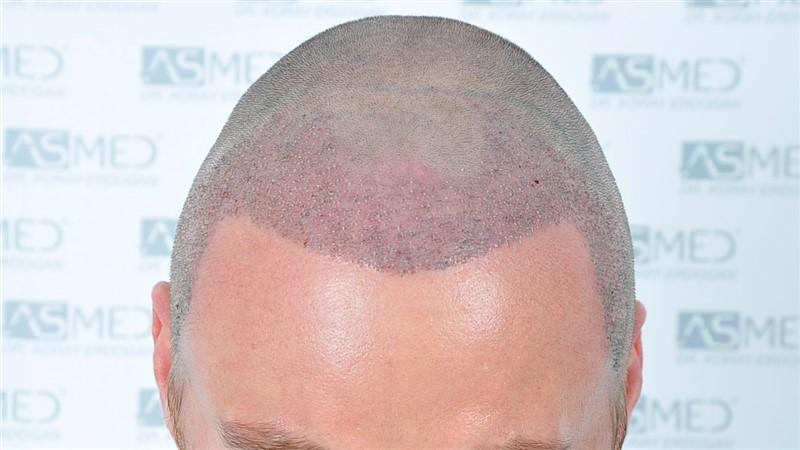 https://www.hairtransplantfue.org/asmed-hair-transplant-result/upload/NORWOOD2/3020-grafts-FUE/operation/_DSC1162_V2.jpg