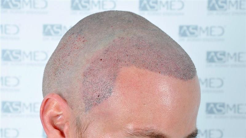 https://www.hairtransplantfue.org/asmed-hair-transplant-result/upload/NORWOOD2/3020-grafts-FUE/operation/_DSC1164_V2.jpg