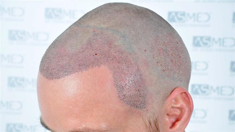 https://www.hairtransplantfue.org/asmed-hair-transplant-result/upload/NORWOOD2/3020-grafts-FUE/operation/_DSC1166_V2.jpg