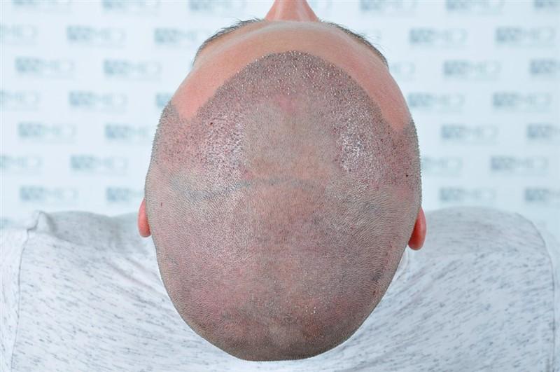https://www.hairtransplantfue.org/asmed-hair-transplant-result/upload/NORWOOD2/3020-grafts-FUE/operation/_DSC1170_V2.jpg