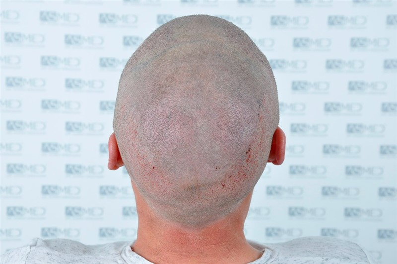 https://www.hairtransplantfue.org/asmed-hair-transplant-result/upload/NORWOOD2/3020-grafts-FUE/operation/_DSC1171_V2.jpg