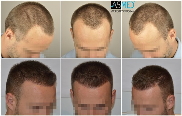 Dr Koray Erdogan - 3205 grafts FUE