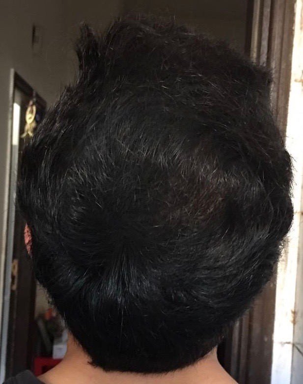 hair style on me international hair loss forum dr koray erdogan asmed 3606