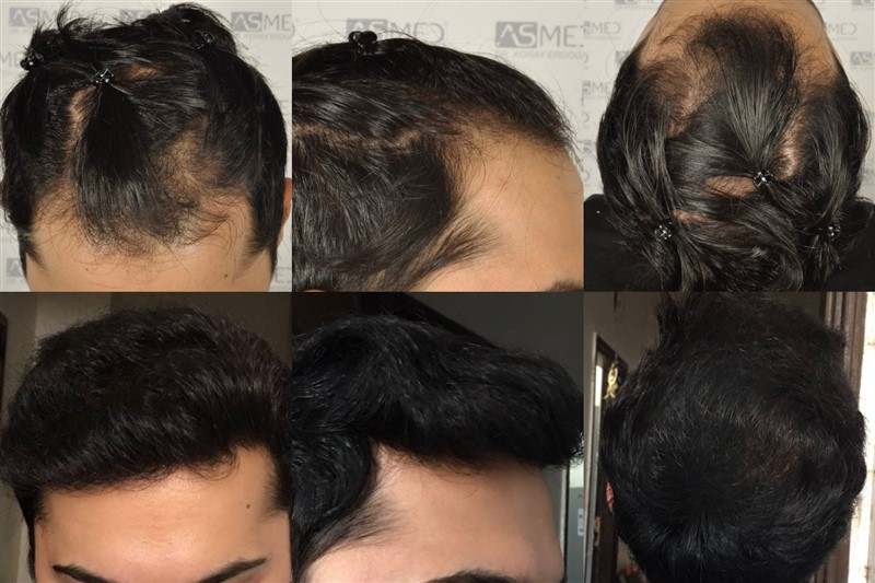Dr Koray Erdogan -  3606 grafts FUE