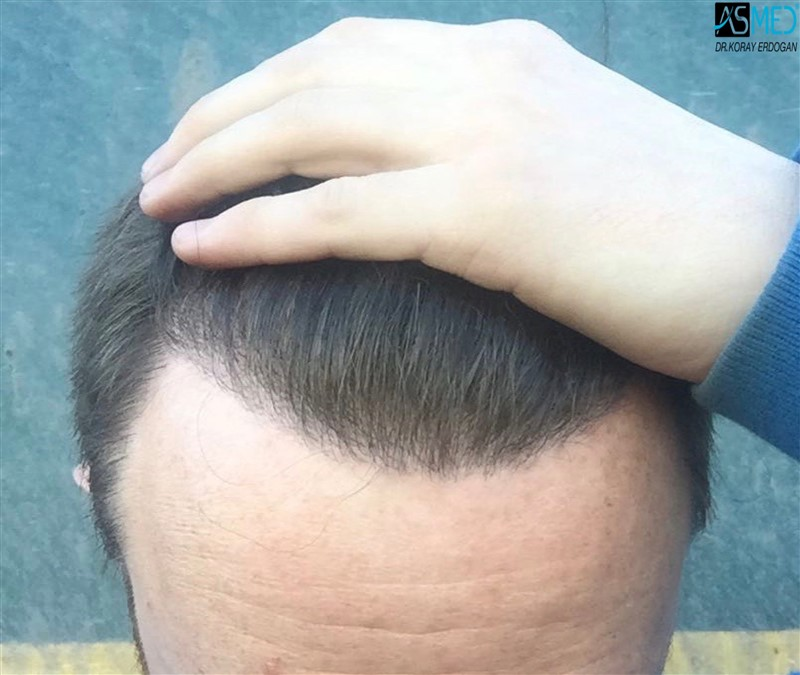 //www.hairtransplantfue.org/asmed-hair-transplant-result/upload/NORWOOD2/3705-grafts-FUE/1year/V2_2aaa.jpg
