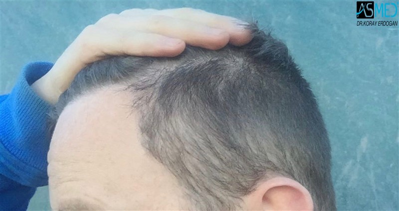 //www.hairtransplantfue.org/asmed-hair-transplant-result/upload/NORWOOD2/3705-grafts-FUE/1year/V2_5aaa.jpg
