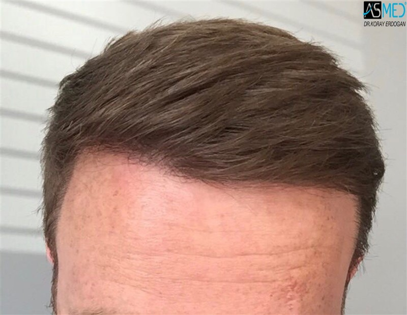 https://www.hairtransplantfue.org/asmed-hair-transplant-result/upload/NORWOOD2/3705-grafts-FUE/1year5months/V2_2017-05-08-PHOTO-00000056aaa.jpg
