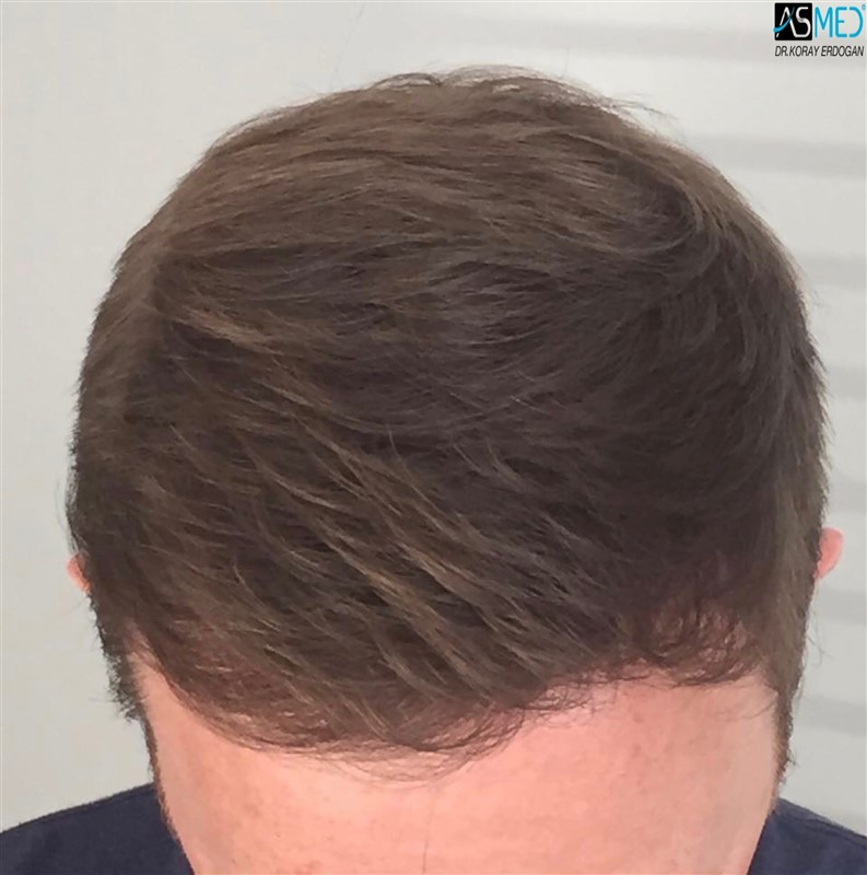 https://www.hairtransplantfue.org/asmed-hair-transplant-result/upload/NORWOOD2/3705-grafts-FUE/1year5months/V2_2017-05-08-PHOTO-00000057aaa.jpg