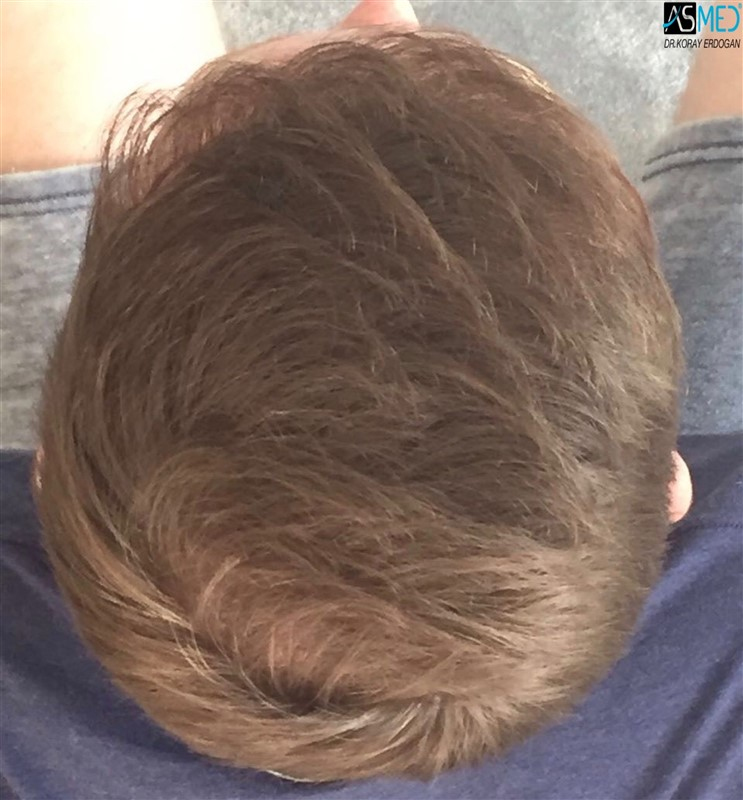 https://www.hairtransplantfue.org/asmed-hair-transplant-result/upload/NORWOOD2/3705-grafts-FUE/1year5months/V2_2017-05-08-PHOTO-00000058aaa.jpg